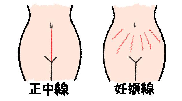 正中線,妊娠線